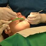precio y coste de una endodoncia