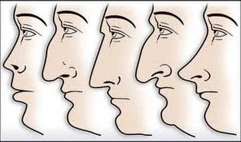 todos los tipos de nariz que existen