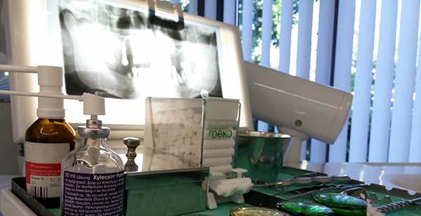 te contamos cuanto cuesta un implante de dientes